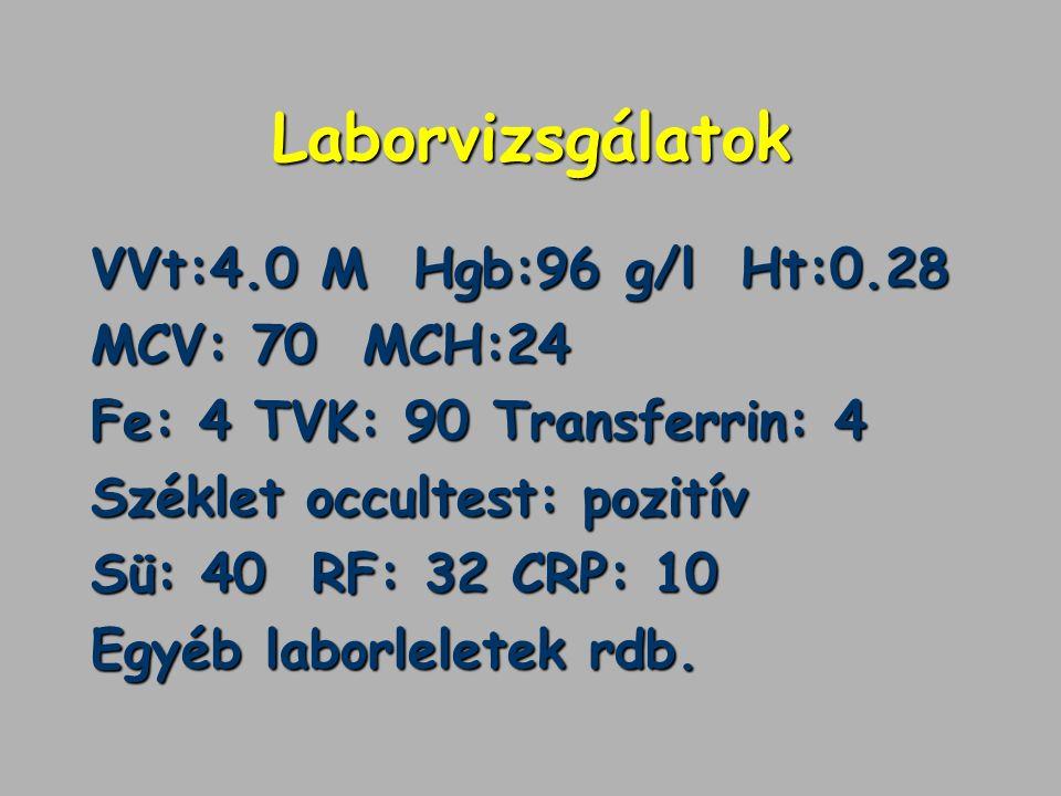Laborvizsgálatok VVt:4.0 M Hgb:96 g/l Ht:0.28 MCV: 70 MCH:24