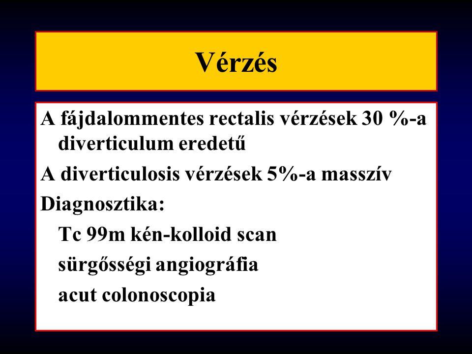 Vérzés A fájdalommentes rectalis vérzések 30 %-a diverticulum eredetű
