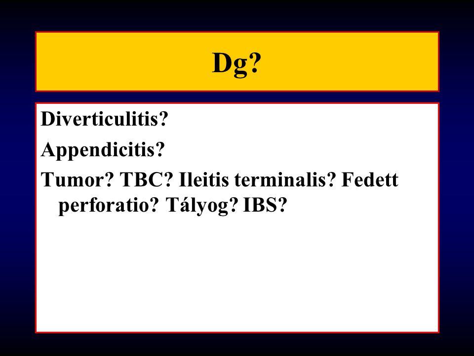 Dg Diverticulitis Appendicitis