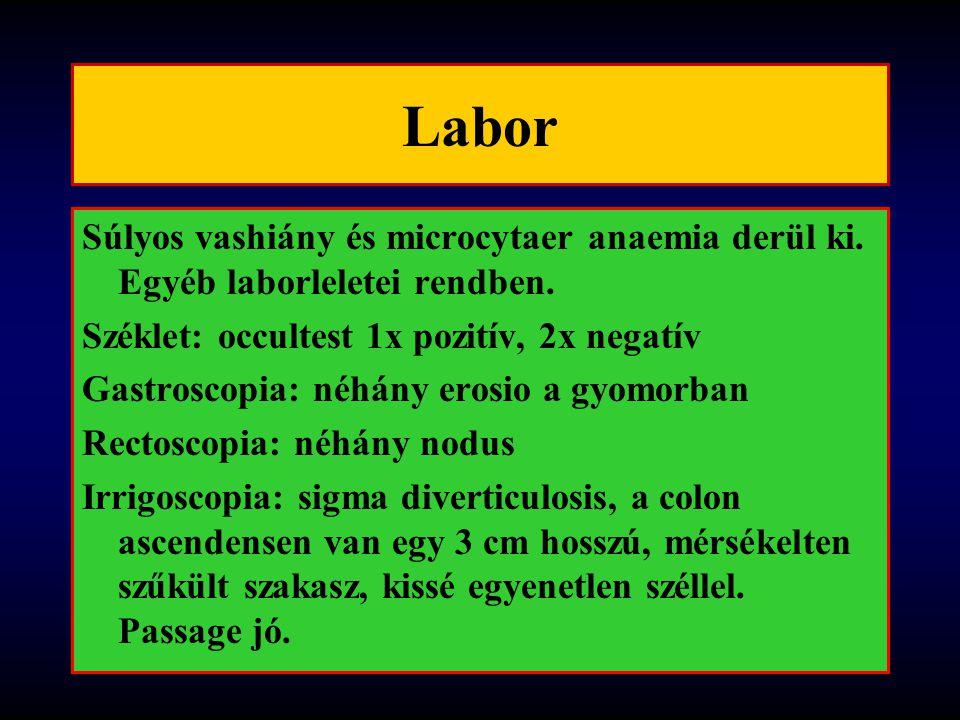 Labor Súlyos vashiány és microcytaer anaemia derül ki. Egyéb laborleletei rendben. Széklet: occultest 1x pozitív, 2x negatív.