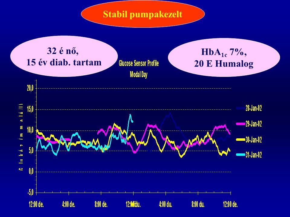 Stabil pumpakezelt 32 é nő, 15 év diab. tartam HbA1c 7%, 20 E Humalog