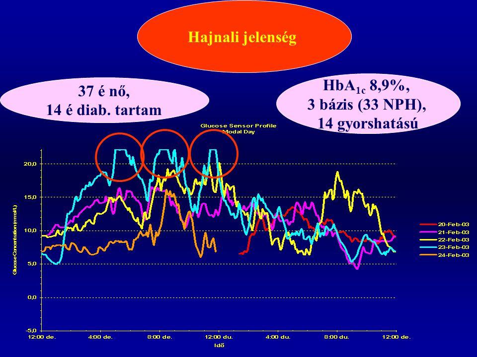 Hajnali jelenség HbA1c 8,9%, 3 bázis (33 NPH), 14 gyorshatású 37 é nő, 14 é diab. tartam
