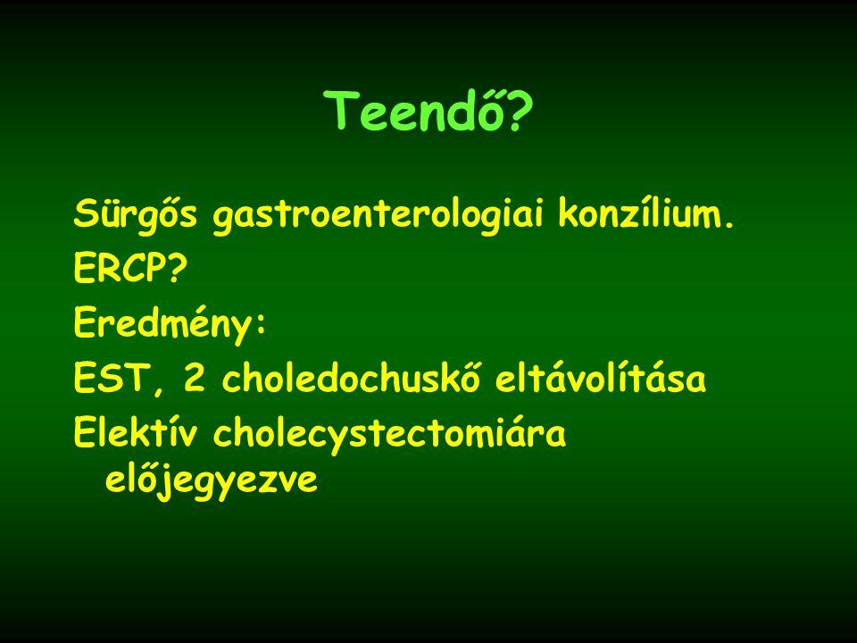 Teendő Sürgős gastroenterologiai konzílium. ERCP Eredmény: