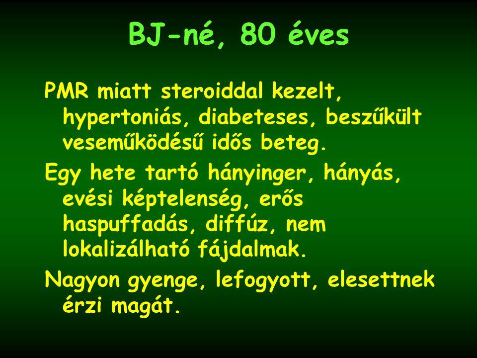BJ-né, 80 éves PMR miatt steroiddal kezelt, hypertoniás, diabeteses, beszűkült veseműködésű idős beteg.