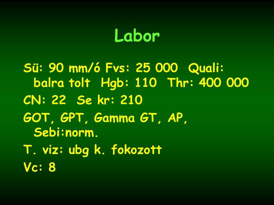 Labor Sü: 90 mm/ó Fvs: 25 000 Quali: balra tolt Hgb: 110 Thr: 400 000
