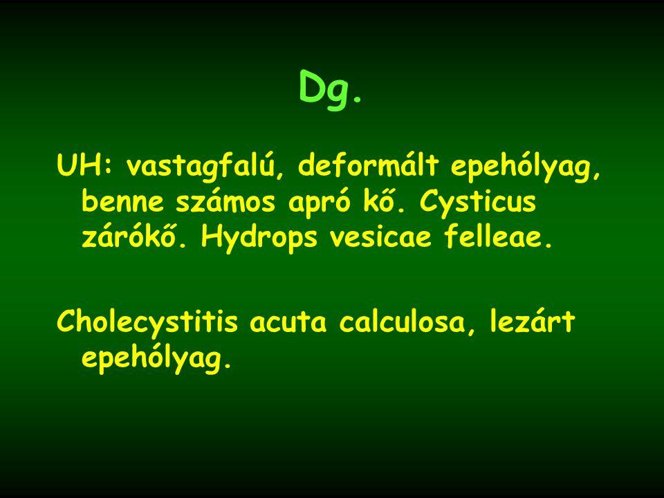 Dg. UH: vastagfalú, deformált epehólyag, benne számos apró kő. Cysticus zárókő. Hydrops vesicae felleae.