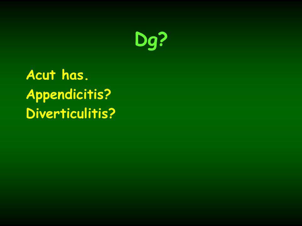 Dg Acut has. Appendicitis Diverticulitis