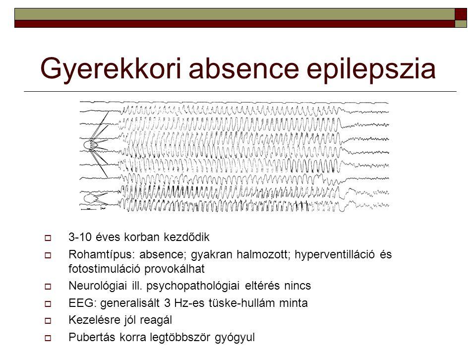 Gyerekkori absence epilepszia