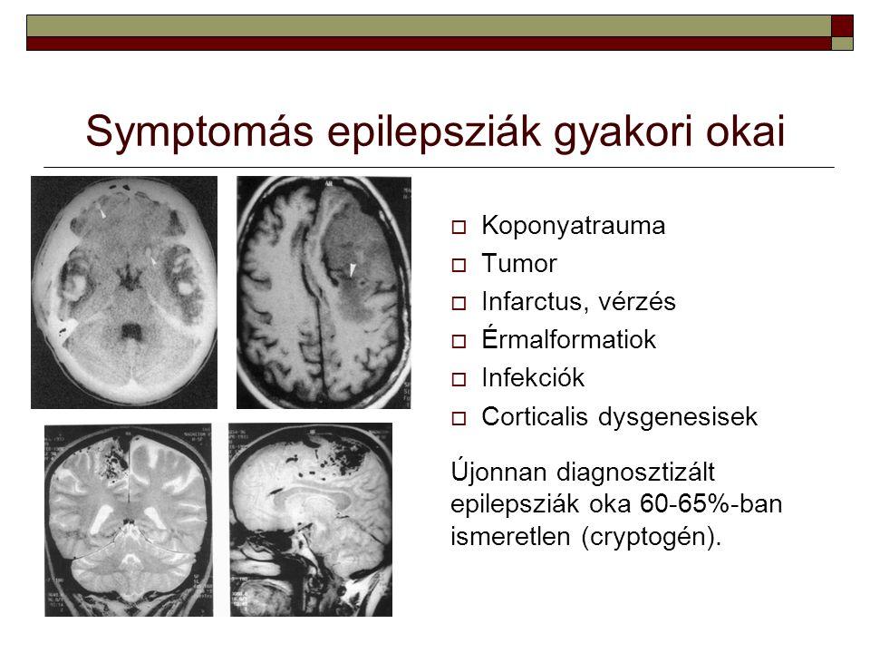 Symptomás epilepsziák gyakori okai