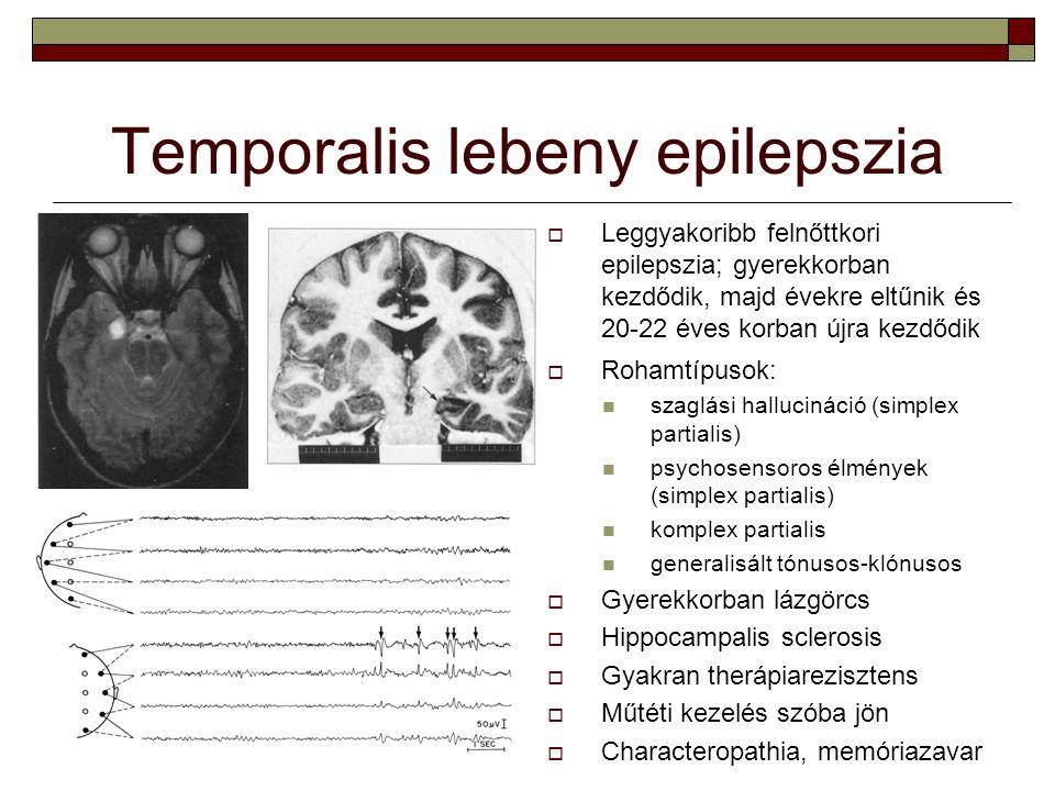 Temporalis lebeny epilepszia
