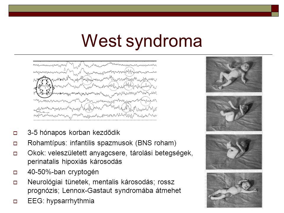 West syndroma 3-5 hónapos korban kezdődik