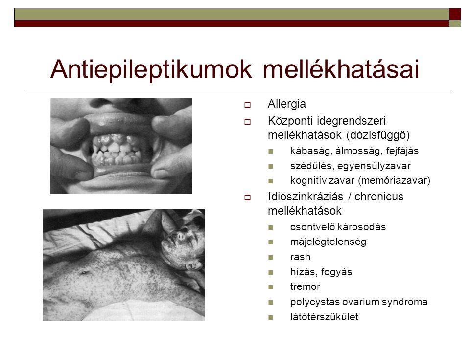 Antiepileptikumok mellékhatásai