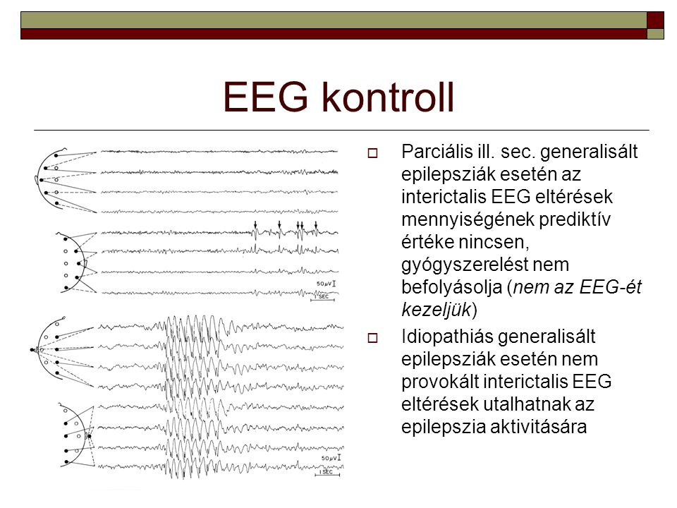 EEG kontroll