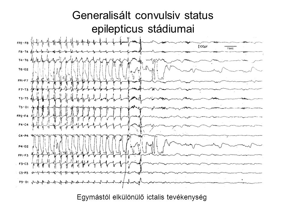 Generalisált convulsiv status epilepticus stádiumai