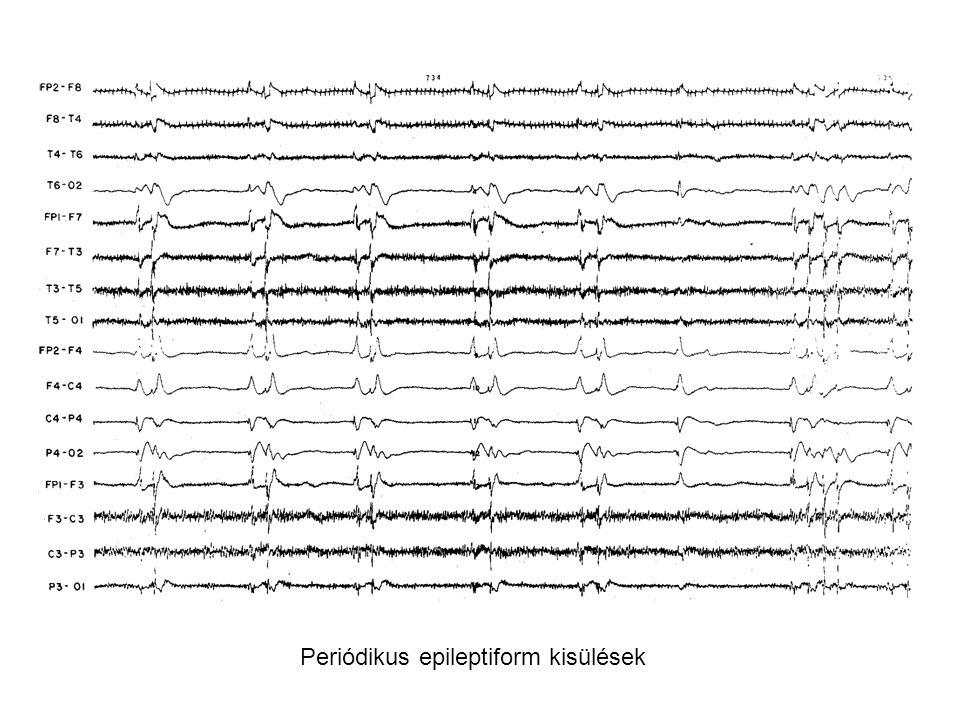 Periódikus epileptiform kisülések