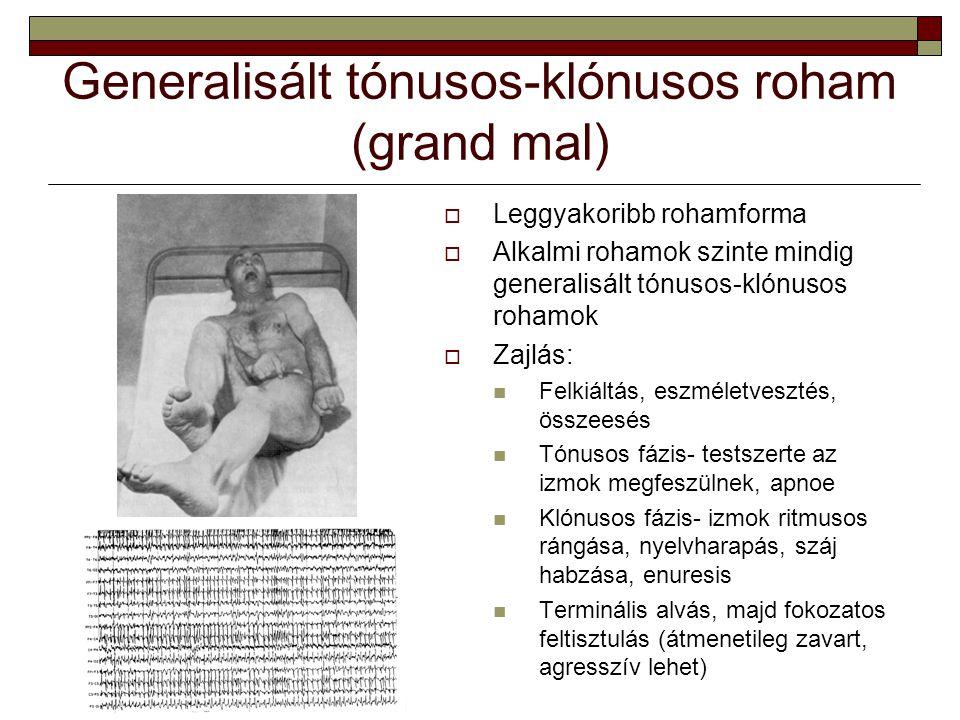Generalisált tónusos-klónusos roham (grand mal)