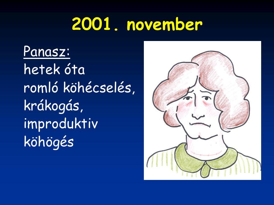 2001. november Panasz: hetek óta romló köhécselés, krákogás,