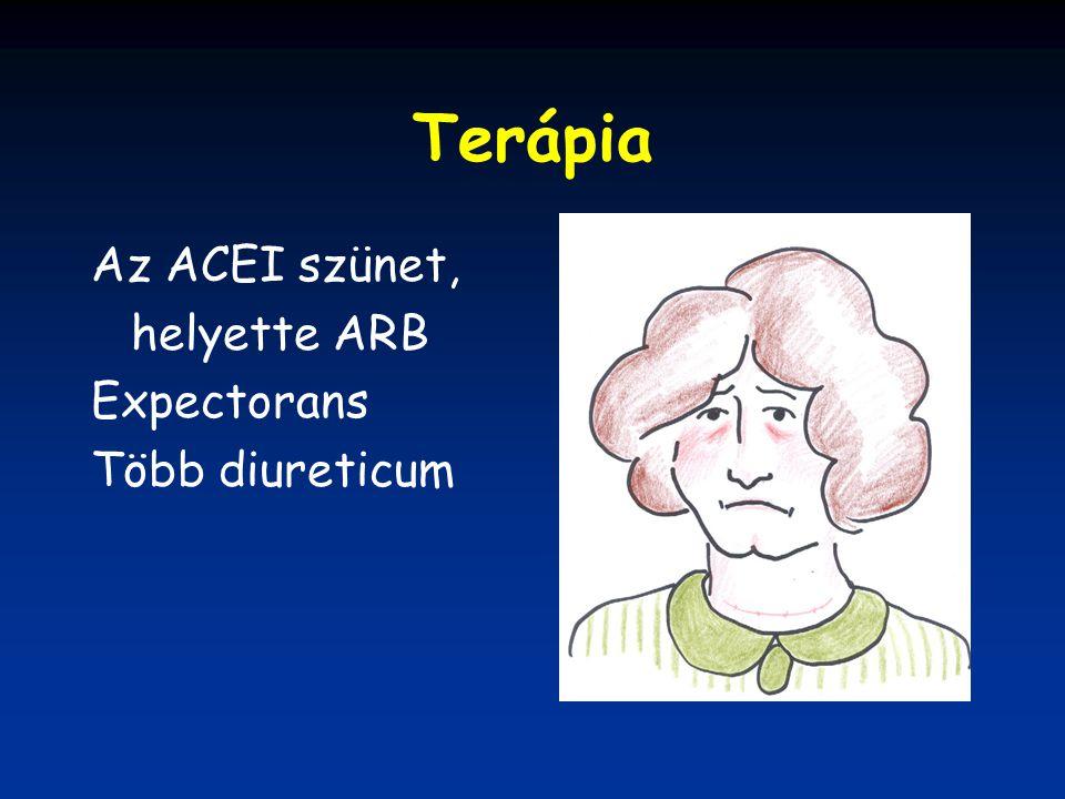 Terápia Az ACEI szünet, helyette ARB Expectorans Több diureticum