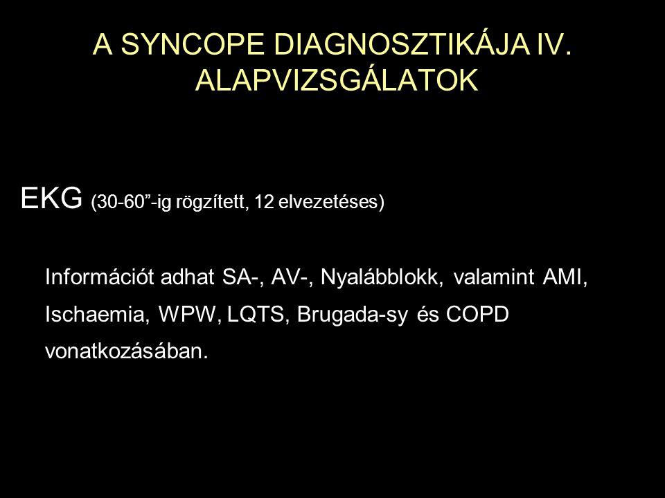 A SYNCOPE DIAGNOSZTIKÁJA IV. ALAPVIZSGÁLATOK