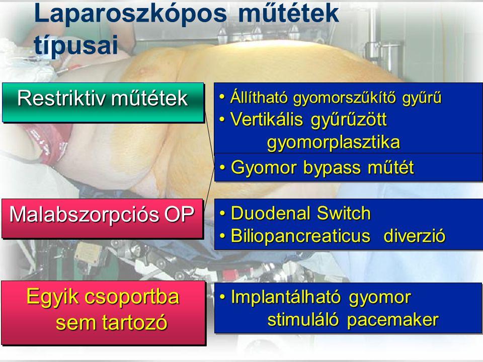 Laparoszkópos műtétek típusai