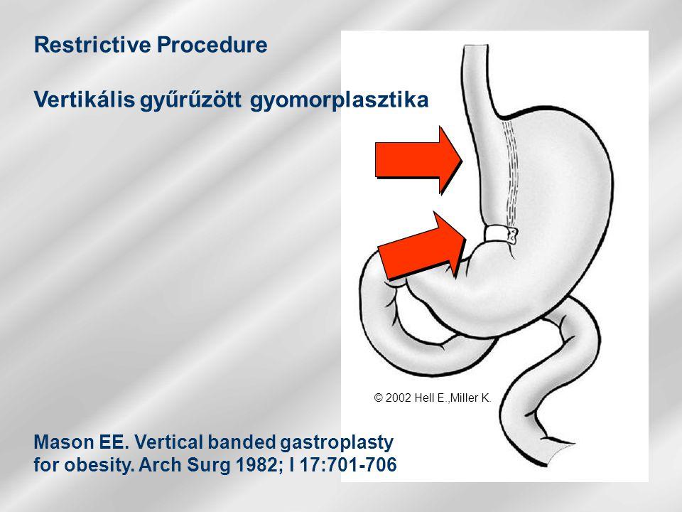 Restrictive Procedure Vertikális gyűrűzött gyomorplasztika