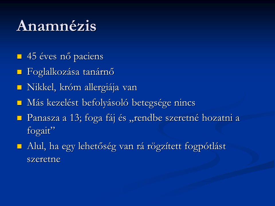 Anamnézis 45 éves nő paciens Foglalkozása tanárnő