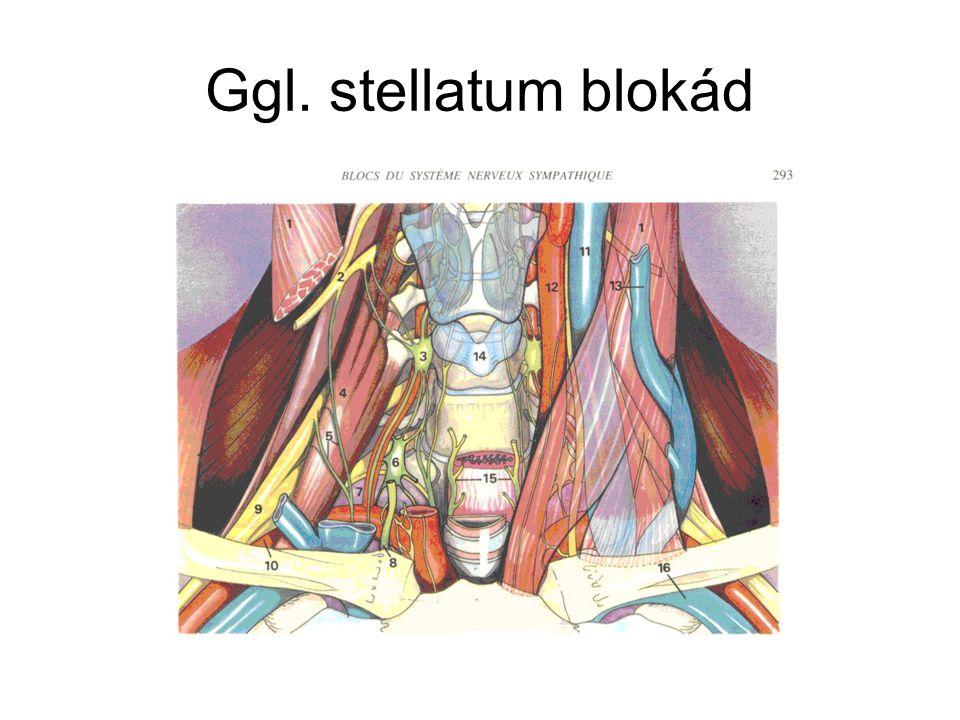 Ggl. stellatum blokád