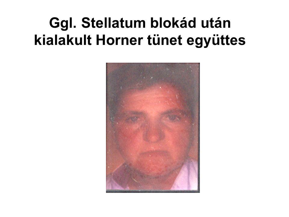 Ggl. Stellatum blokád után kialakult Horner tünet együttes
