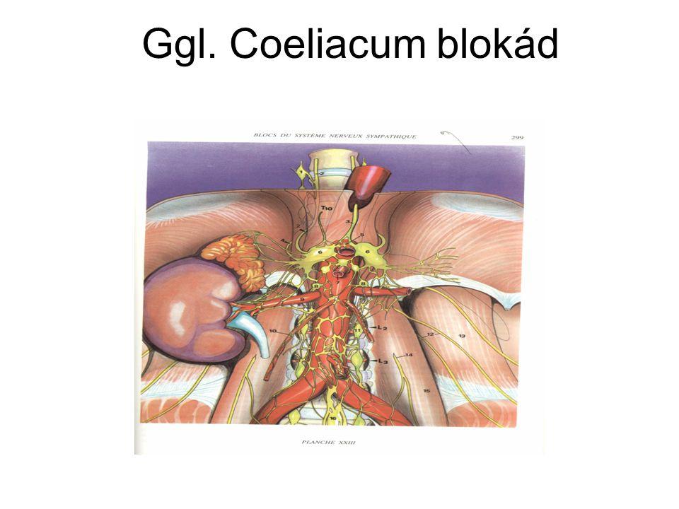 Ggl. Coeliacum blokád - krónikus pankreatitisz