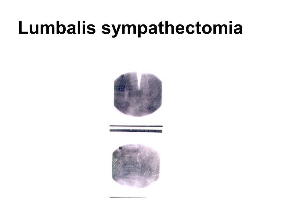 Lumbalis sympathectomia