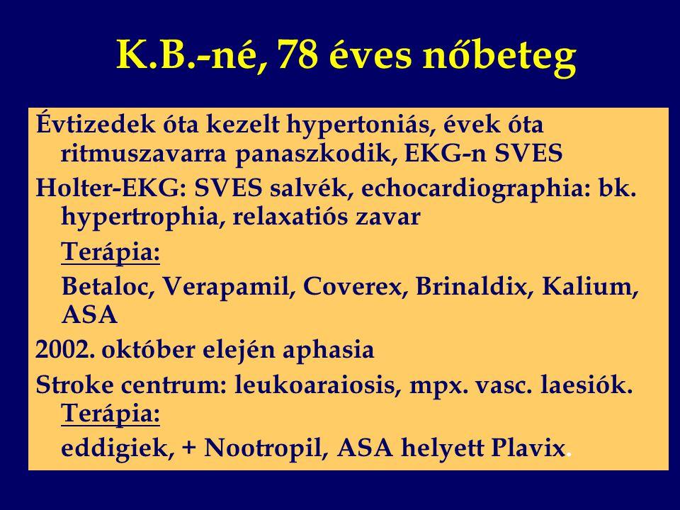 K.B.-né, 78 éves nőbeteg Évtizedek óta kezelt hypertoniás, évek óta ritmuszavarra panaszkodik, EKG-n SVES.
