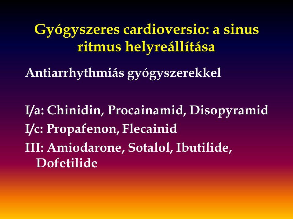 Gyógyszeres cardioversio: a sinus ritmus helyreállítása
