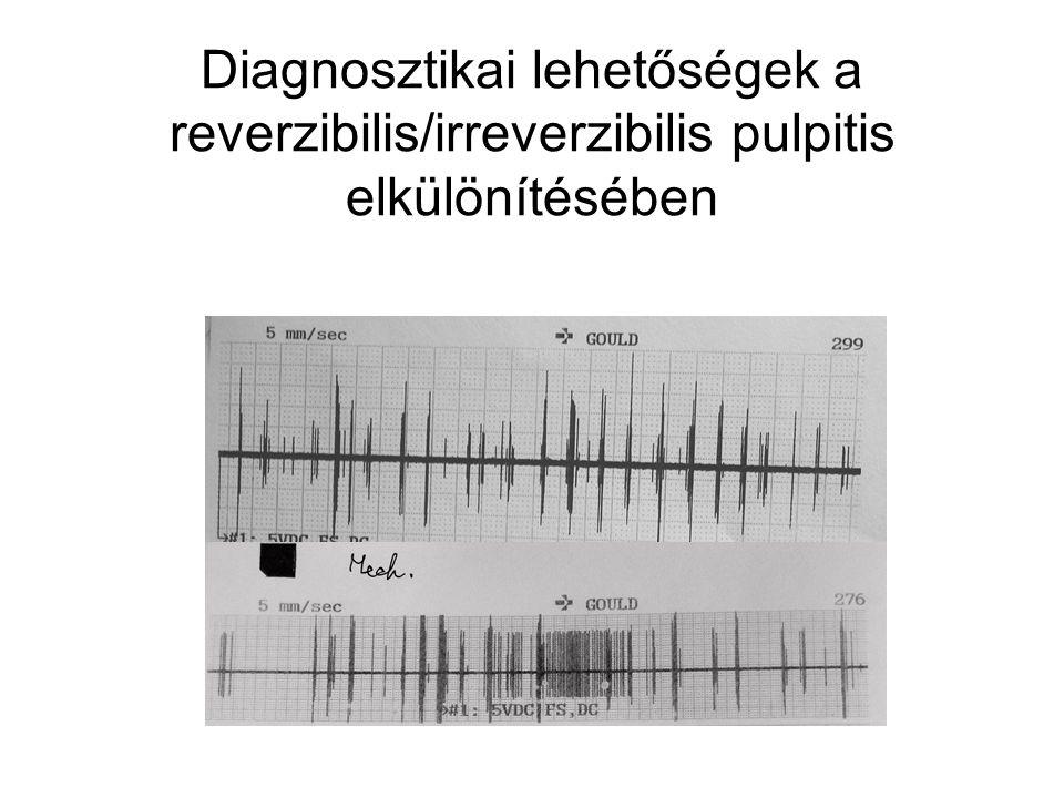 Diagnosztikai lehetőségek a reverzibilis/irreverzibilis pulpitis elkülönítésében