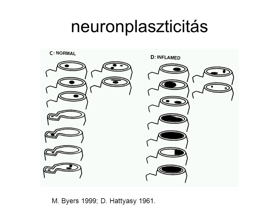neuronplaszticitás M. Byers 1999; D. Hattyasy 1961.