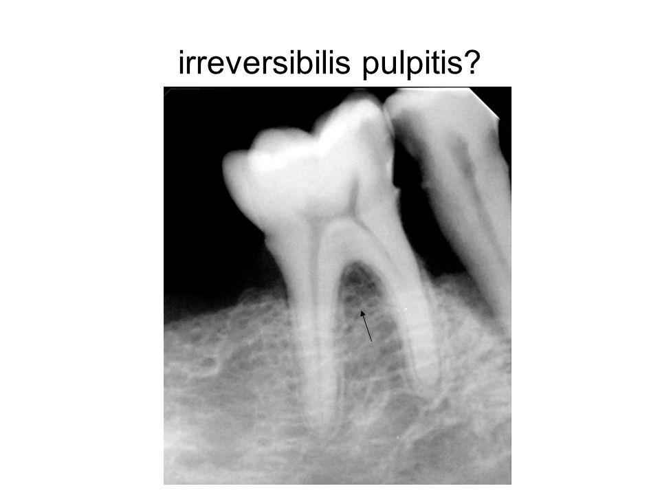 irreversibilis pulpitis