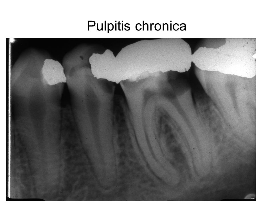 Pulpitis chronica