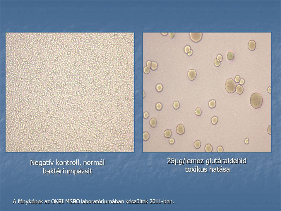 Negatív kontroll, normál baktériumpázsit 25μg/lemez glutáraldehid