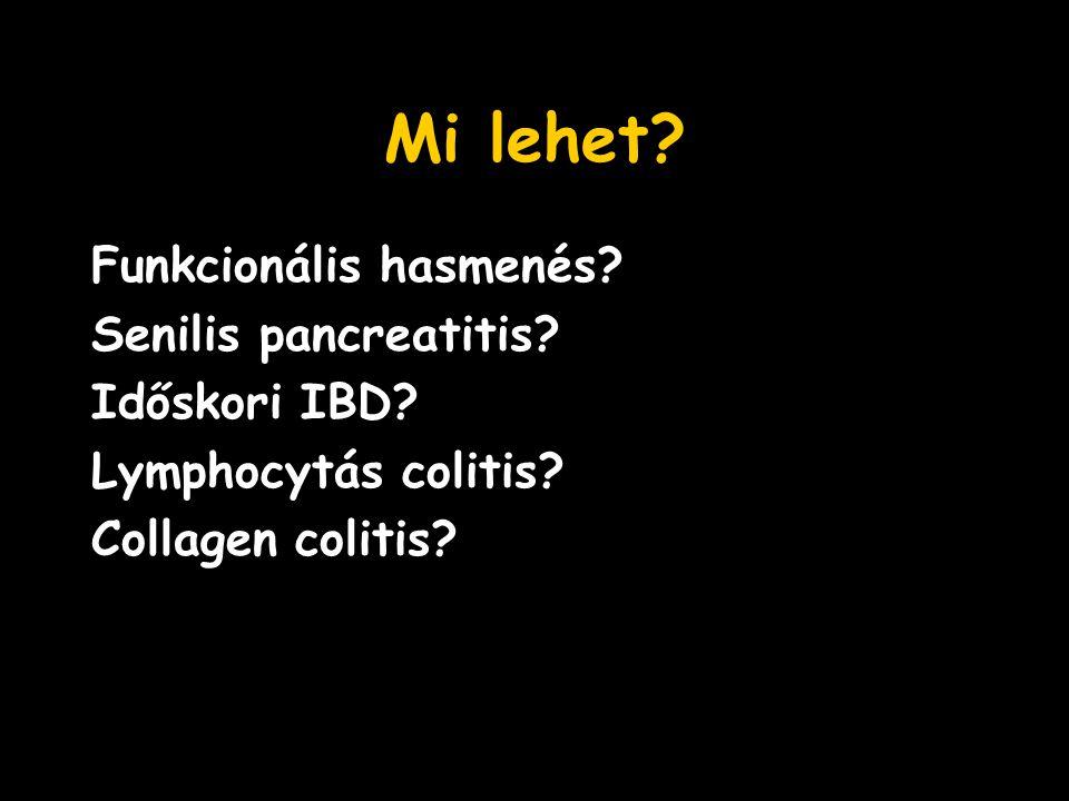 Mi lehet Funkcionális hasmenés Senilis pancreatitis Időskori IBD