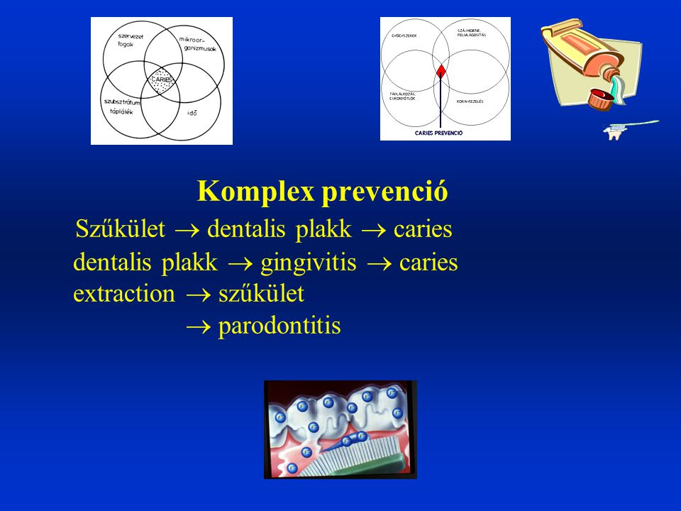 Komplex prevenció Szűkület  dentalis plakk  caries dentalis plakk  gingivitis  caries extraction  szűkület  parodontitis