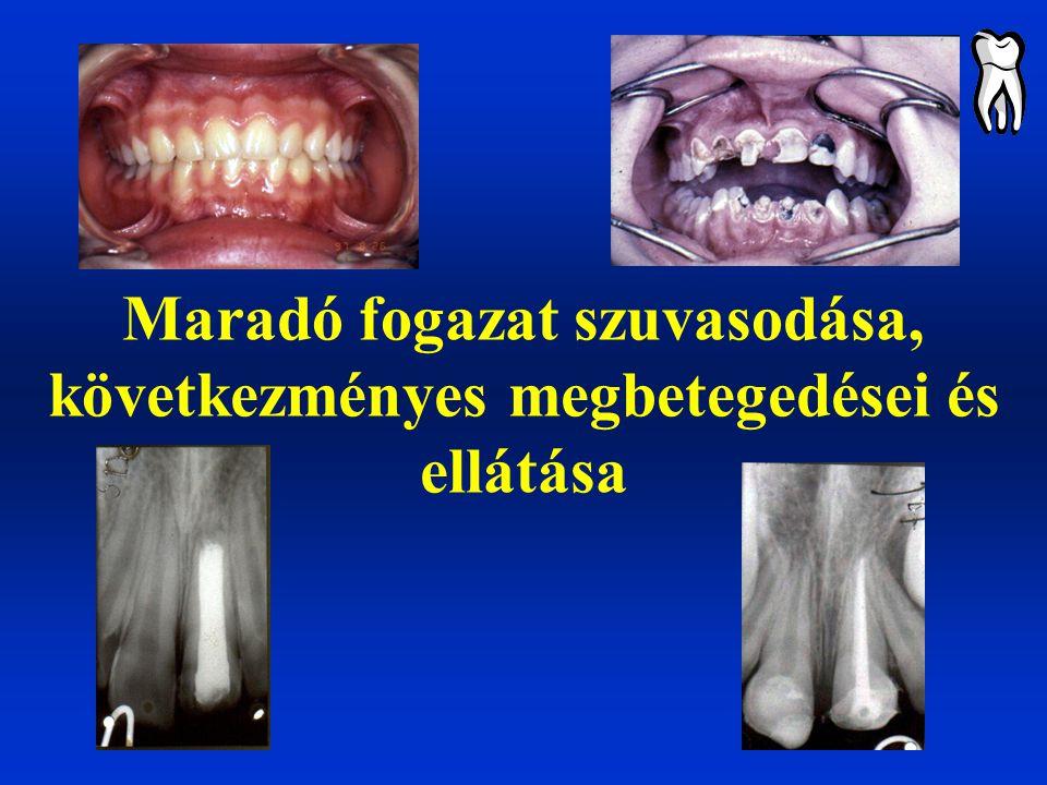 Maradó fogazat szuvasodása, következményes megbetegedései és ellátása