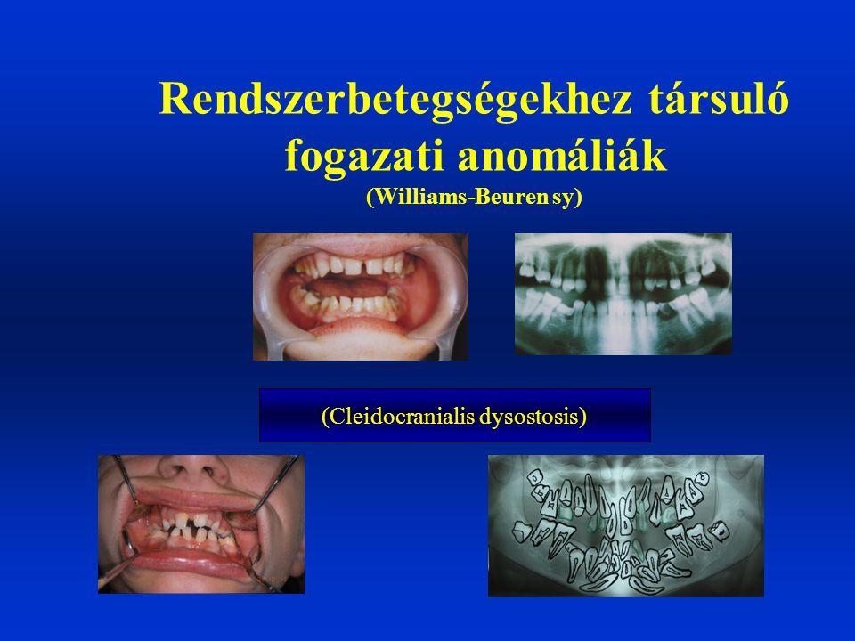 Rendszerbetegségekhez társuló fogazati anomáliák (Williams-Beuren sy)