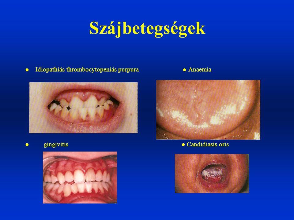 Szájbetegségek ● Idiopathiás thrombocytopeniás purpura ● Anaemia