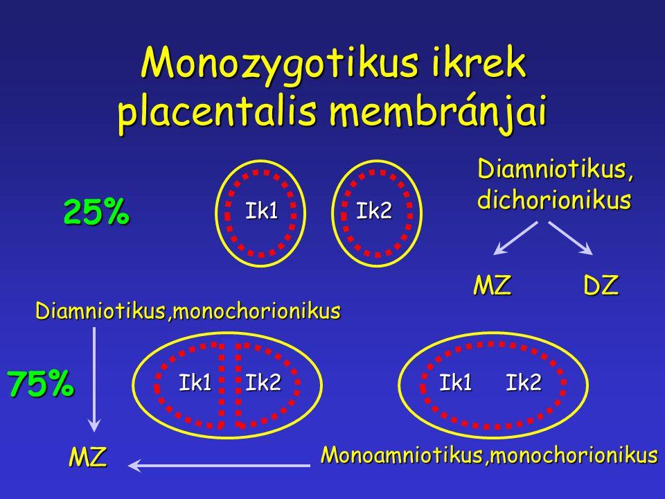 Monozygotikus ikrek placentalis membránjai
