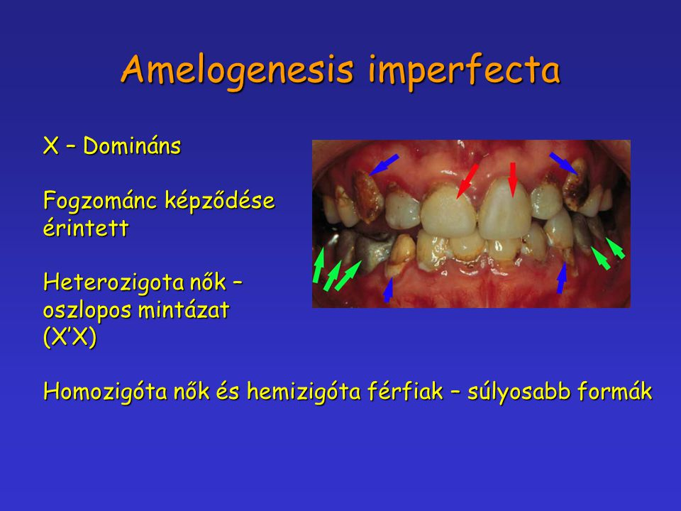 Amelogenesis imperfecta