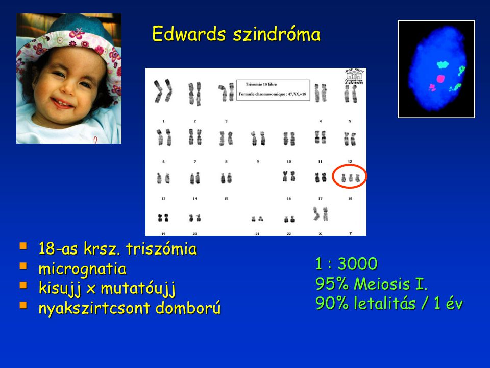 Edwards szindróma 18-as krsz. triszómia micrognatia 1 : 3000