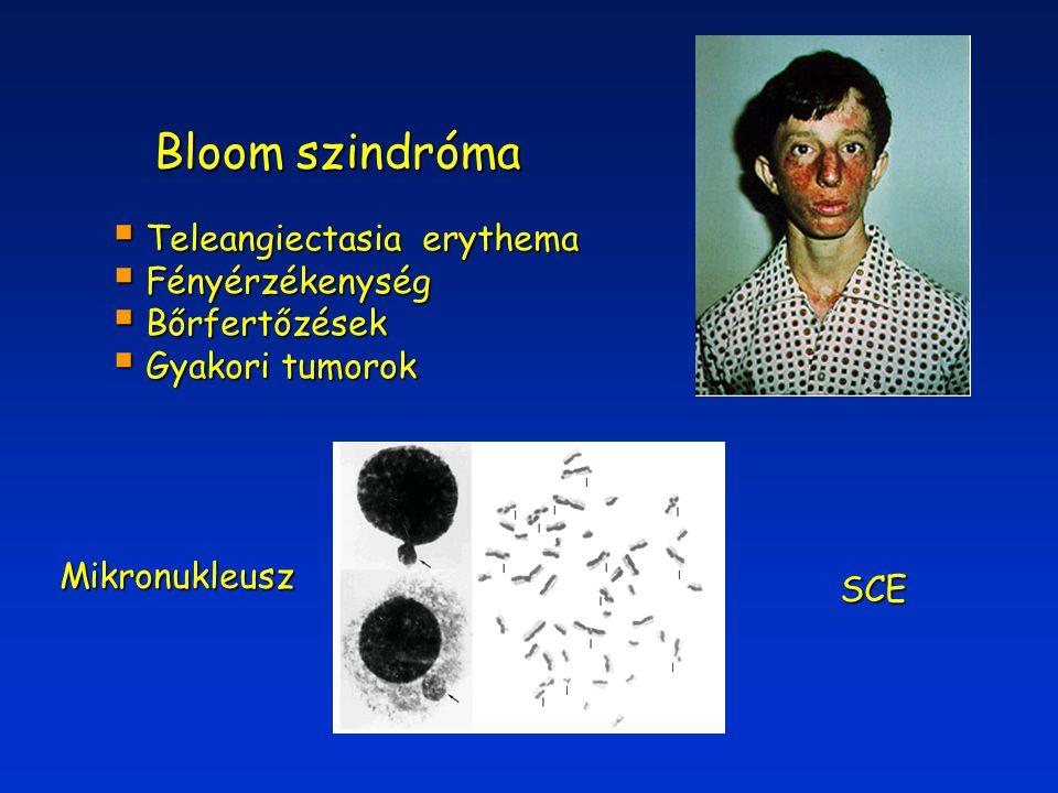Bloom szindróma Teleangiectasia erythema Fényérzékenység Bőrfertőzések