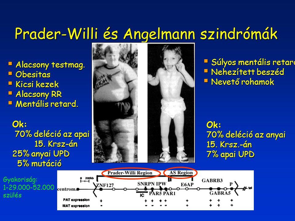 Prader-Willi és Angelmann szindrómák