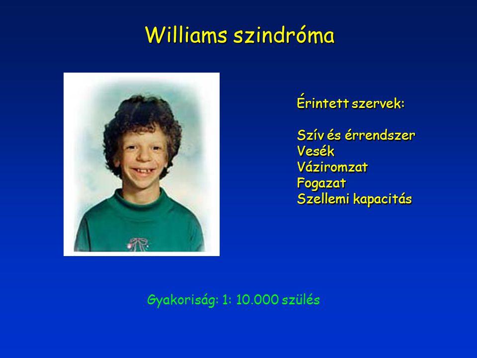 Williams szindróma Érintett szervek: Szív és érrendszer Vesék