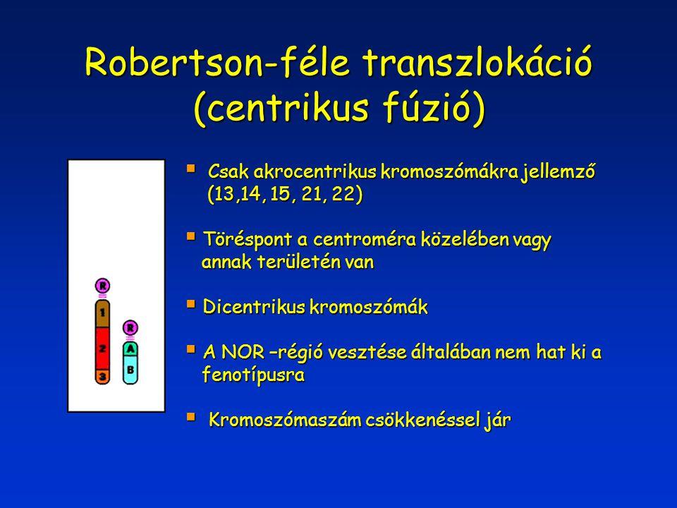Robertson-féle transzlokáció