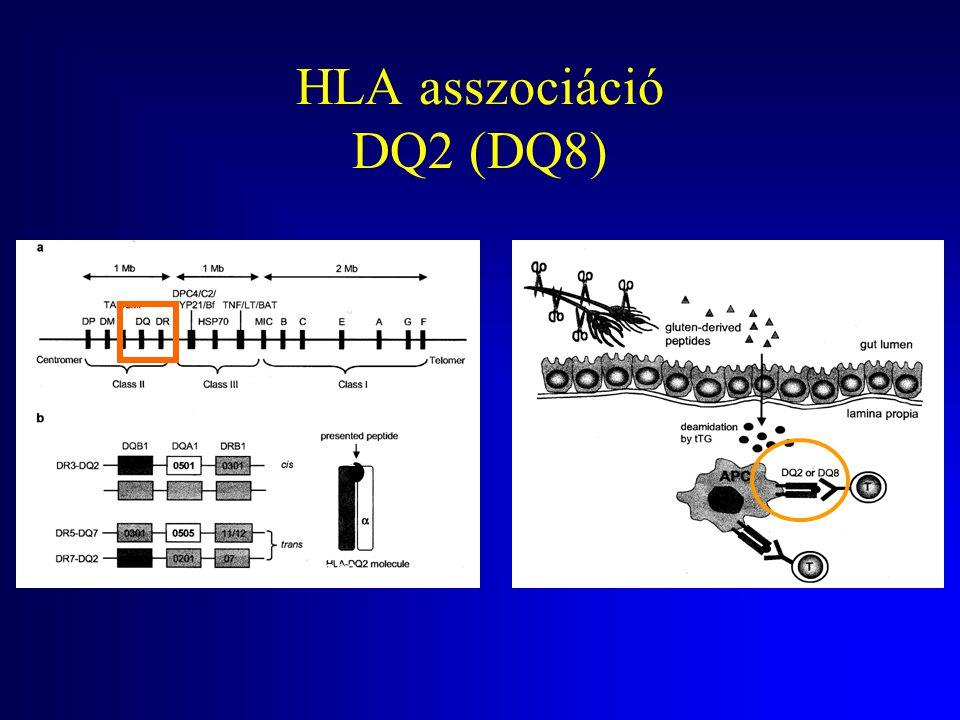 HLA asszociáció DQ2 (DQ8)